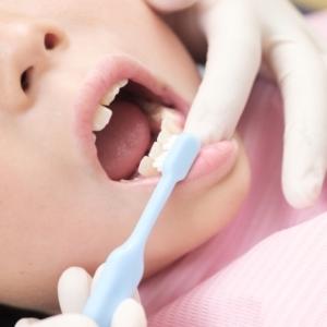 子どものむし歯リスクを下げる「シーラント」って知ってる?シーラントの基礎知識