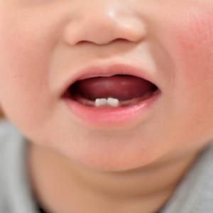 【歯科医のアドバイス】新米ママの多くが悩んでいた!子どもっていつから歯医者に行ったらいいの?