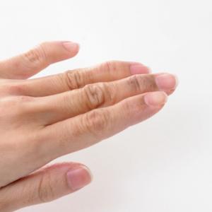 手荒れにつながるNG習慣は?ガサガサな手にならないための、手荒れ対策グッズ3選