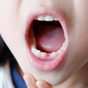 【歯科医が教える】生え変わり期(混合歯列期)は虫歯になりやすい!歯磨きと仕上げ磨きのポイントは?