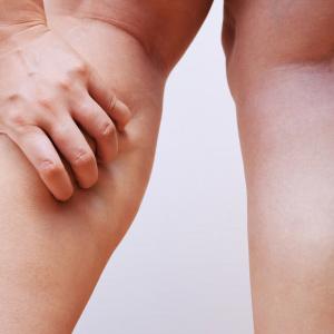 あなたは何個あてはまる?【脚が太くなる原因】太りタイプ別・脚やせの方法は
